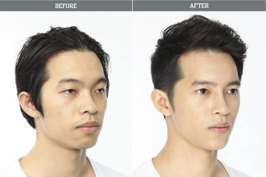 Corée du Sud : La chirurgie esthétique trop parfaite à des répercussions